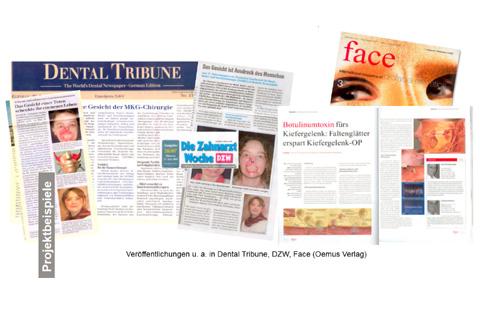 Fach-PR für die Deutsche Gesellschaft für  Mund-, Kiefer- und Gesichtschirurgie (DGMKG)